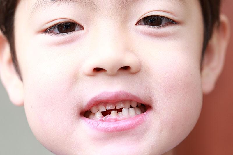 お子さまの歯は、このような状態になっていませんか?